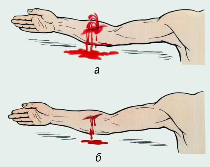 Оказание первой медицинской помощи при ранениях коленного сустава рецепт настойки из чеснока для суставов
